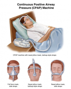 cpap machine masks